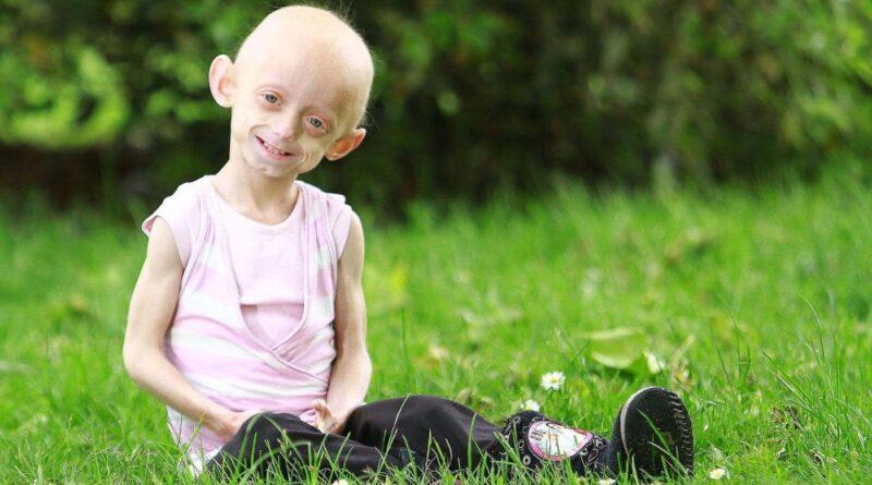 Hutchinson Gilford Progeria Syndrome